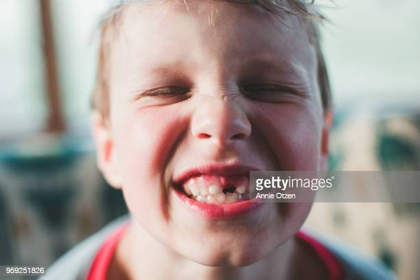 Boy with missing tooth smiling
