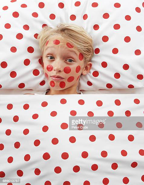 Boy with red spots in red spotty bed