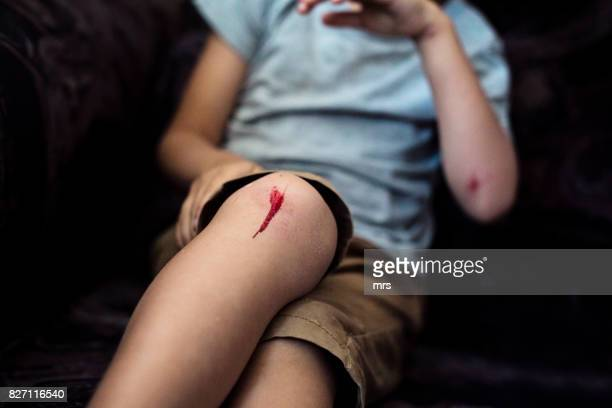 boy with scraped knee - machucado imagens e fotografias de stock