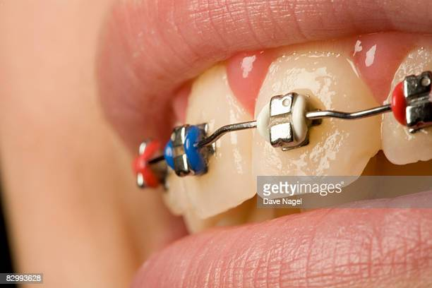 braces on a 12 years old  girl - 12 13 years stock pictures, royalty-free photos & images