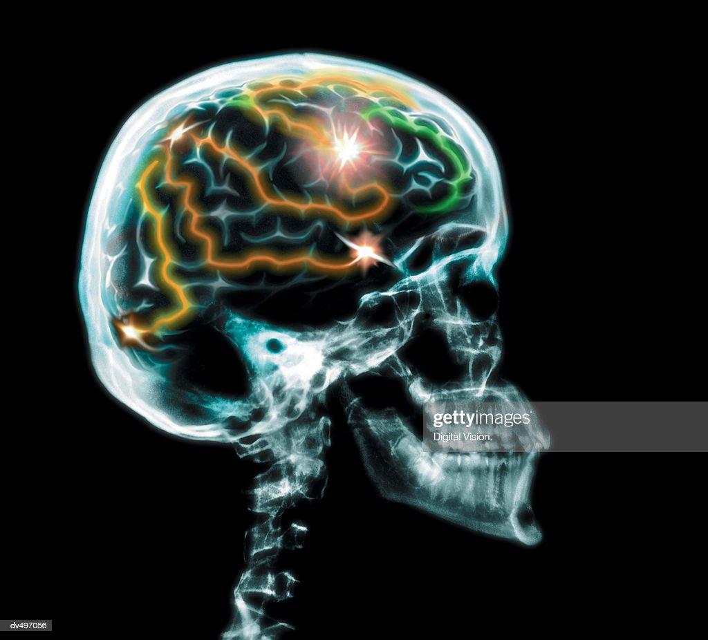 Brain activity : Stock Photo