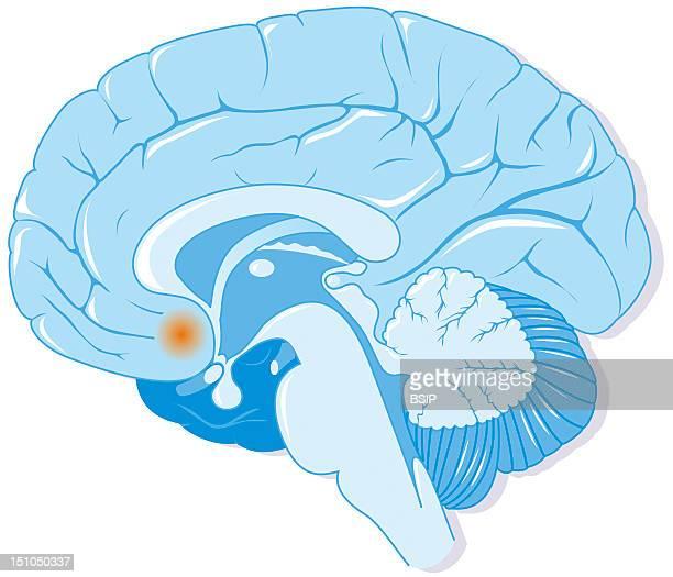 Brain And Localization Of The Accumbens Nucleus In Orange