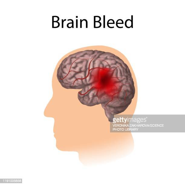 brain bleed, illustration - petechiae stock pictures, royalty-free photos & images