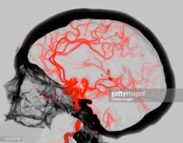 brain ct scan showing vascular circle of willis - artery stock pictures, royalty-free photos & images