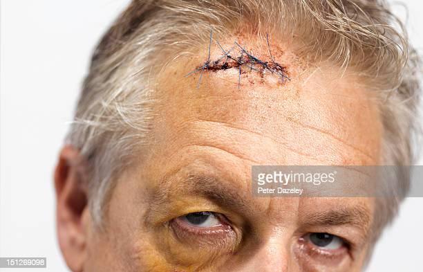 Brain damage injury