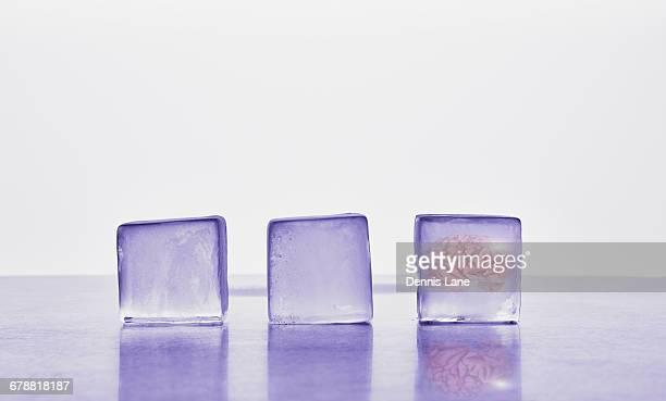 Brain frozen in ice cube