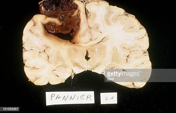 Brain Hemorrhage Anatomy