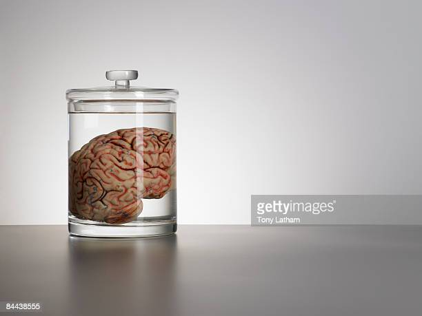 brain in speciman jar