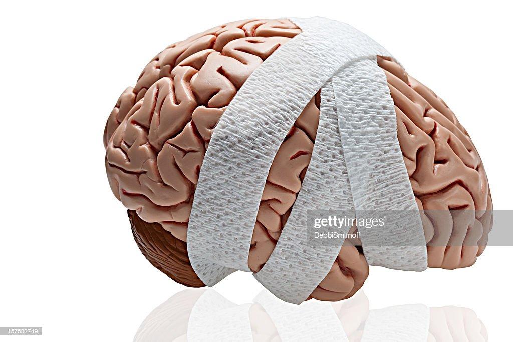 Brain Injury : Stock Photo
