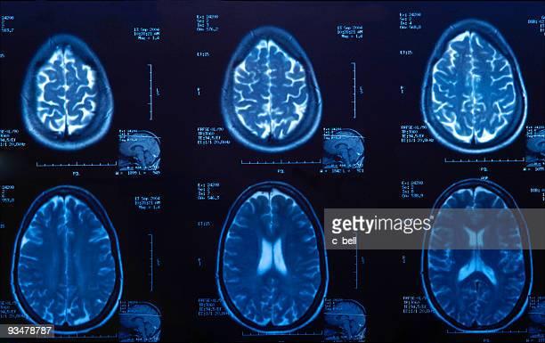 脳の MRI スキャン医療検査