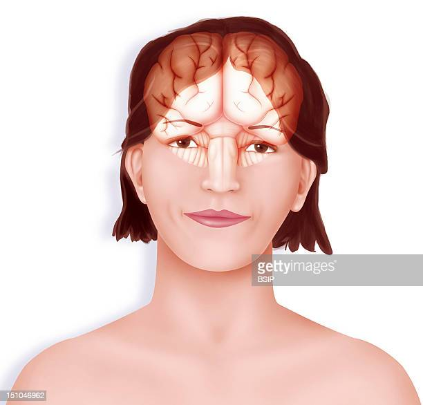 Brain Right And Left Cerebral Hemispheres Separated By The Longitudinal Fissure The Cerebellum And The Brain Stem Set Up In A Woman's Face