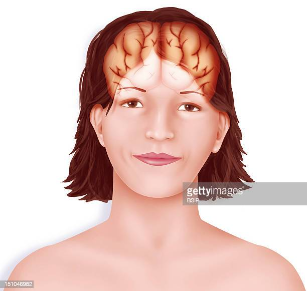 Brain Right And Left Cerebral Hemispheres Separated By The Longitudinal Fissure Set Up In A Woman's Face