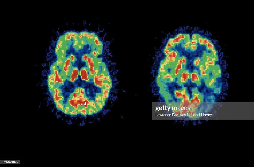 Brain Scan Comparison : Stock Photo
