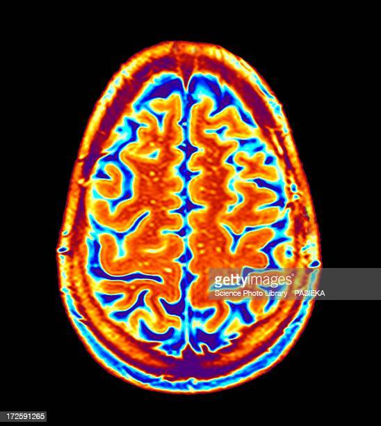 brain scan, mri scan - mri scan stock pictures, royalty-free photos & images