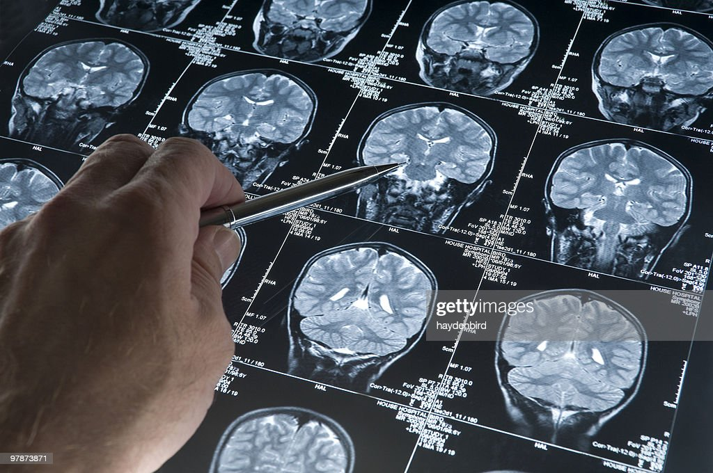 MRI Brain Scan of head and skull with hand pointing : Stock Photo