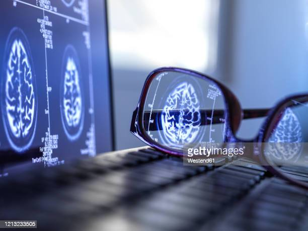 brain scan results reflecting in protective glasses lying on laptop keyboard - tomography stock pictures, royalty-free photos & images