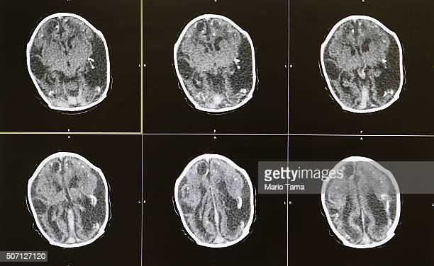 Brain scans of a 2-month-old baby with microcephaly are displayed by Dr. Vanessa Van Der Linden, the neuro-pediatrician who first recognized and...