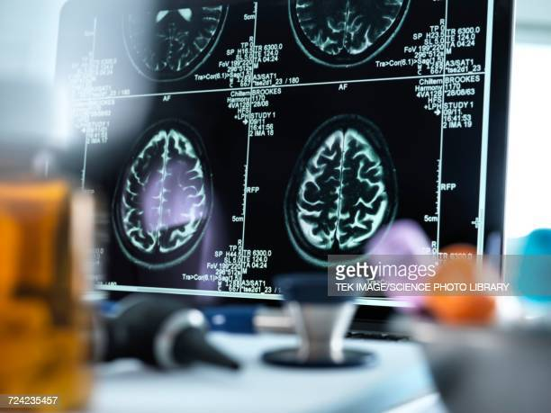 mri brain scans - human internal organ stock photos and pictures