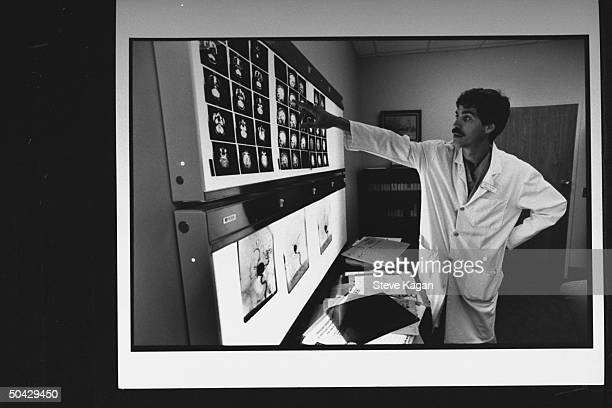 Brain surgeon Dr Robert Solomon pointing at angiogram images prob of brain surgery patient Nancy Loiacono as he stands in office at Columbia...