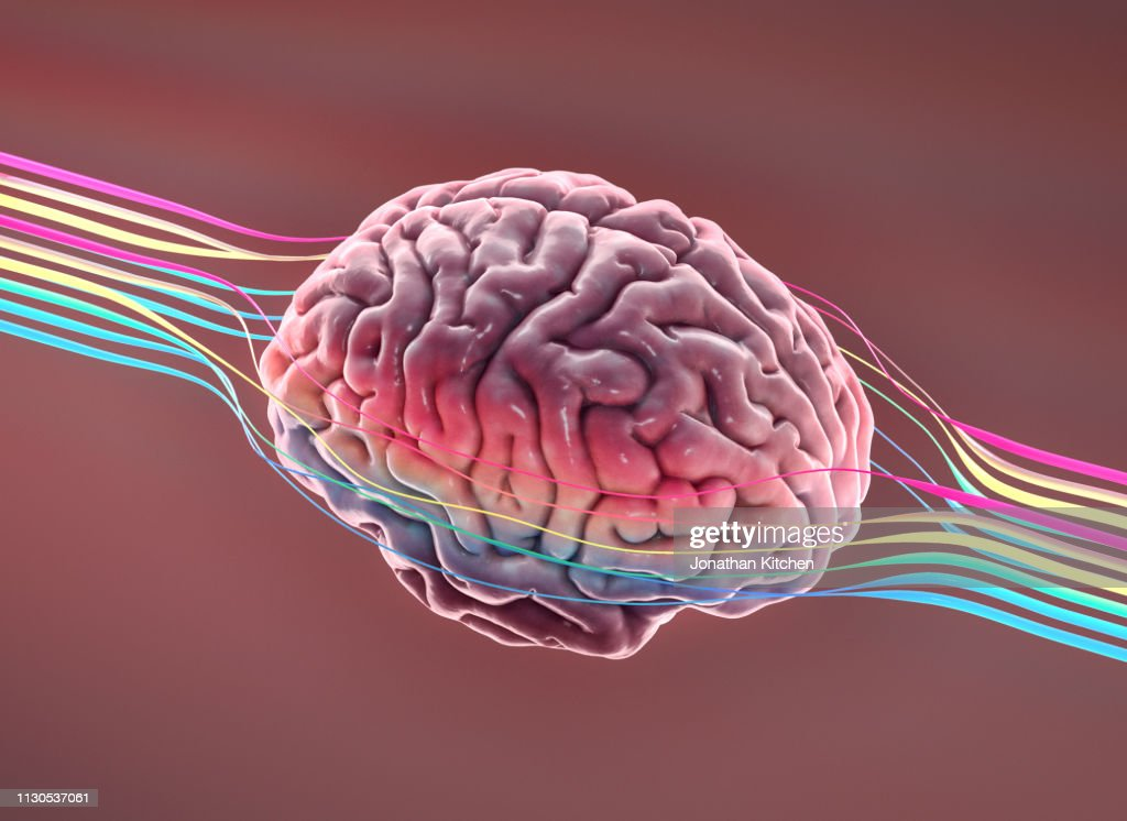 Brain with wires : Stock Photo
