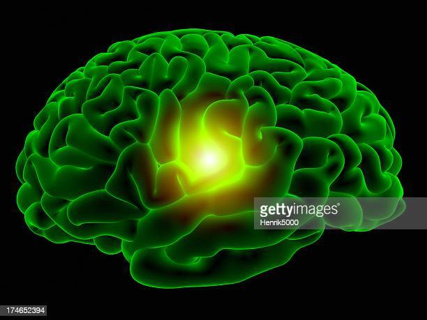 Cerebro rayos x