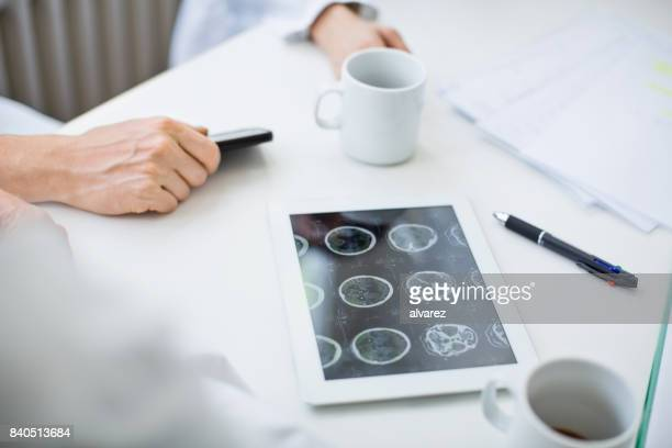Gehirn Röntgen Bilder auf digitale tablet