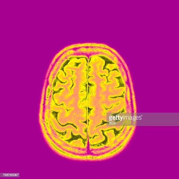 brain,mri - cerebrum stock photos and pictures