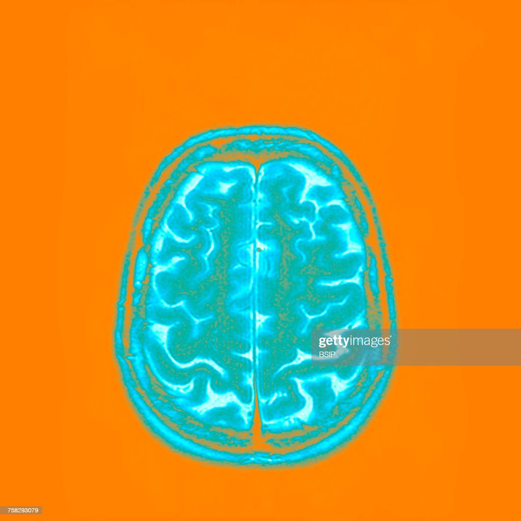 Brain,mri : Stock Photo