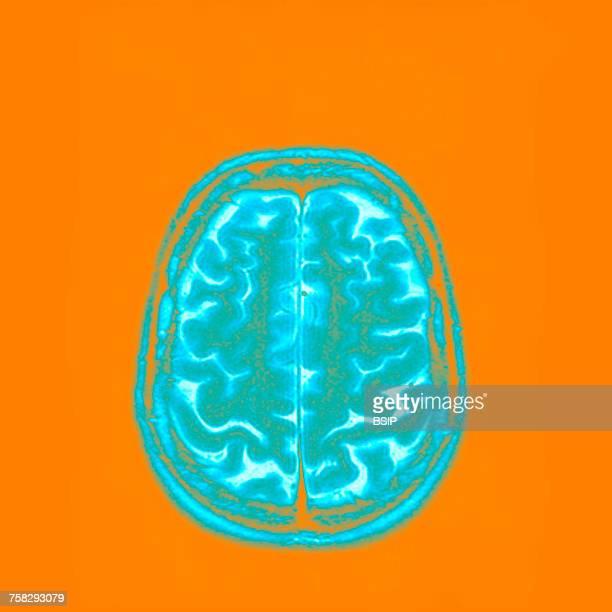 Brain,mri
