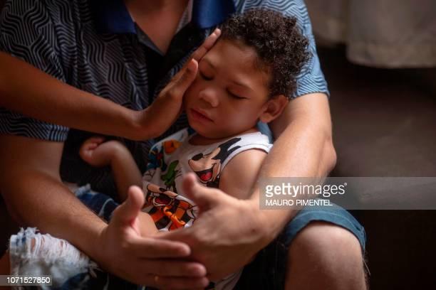 TOPSHOT Brazilian Thamires Cristina dos Santos Ferreira da Silva touches twoyearold son Matheus Silva who was born with microcephaly as her husband...