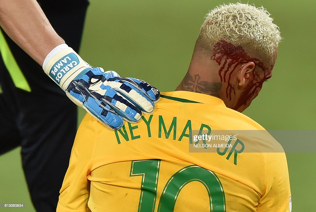TOPSHOT - Brazil's Neymar bleeds after being injured in the face during the Russia 2018 World Cup football qualifier match against Bolivia in Natal, Brazil, on October 6, 2016. / AFP / Nelson ALMEIDA
