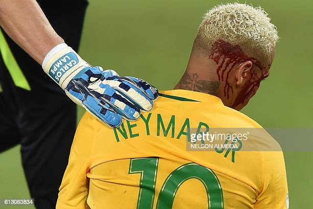TOPSHOT Brazil's Neymar bleeds after being injured in the face during the Russia 2018 World Cup football qualifier match against Bolivia in Natal...