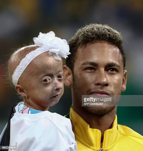 Brazil's Neymar poses with Ana Clara who suffers HutchinsonGilford syndrome before the FIFA 2018 World Cup qualifier football match against Chile in...