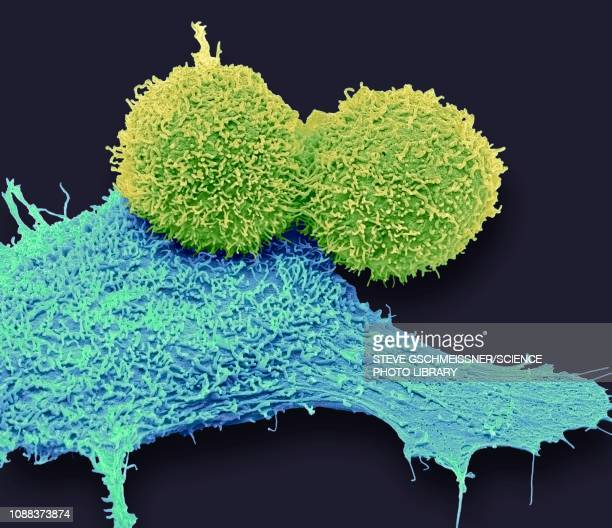 breast cancer cells, sem - sem stock pictures, royalty-free photos & images