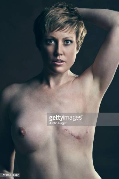 Breast Cancer Survivor with Mastectomy Scar