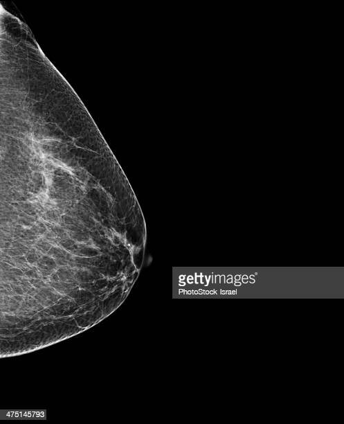 breast mammography, x-ray of woman's breast for early identification of breast cancer - x ray image ストックフォトと画像