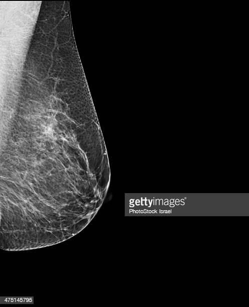 breast mammography, x-ray of woman's breast for early identification of breast cancer - mammogram stock pictures, royalty-free photos & images