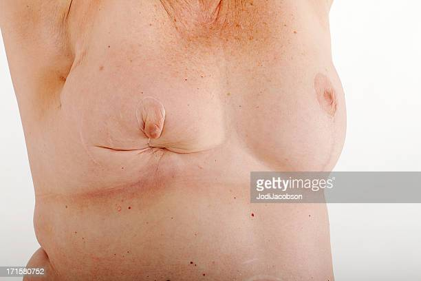 Breasts after Multiple lumpectomys for breast cancer