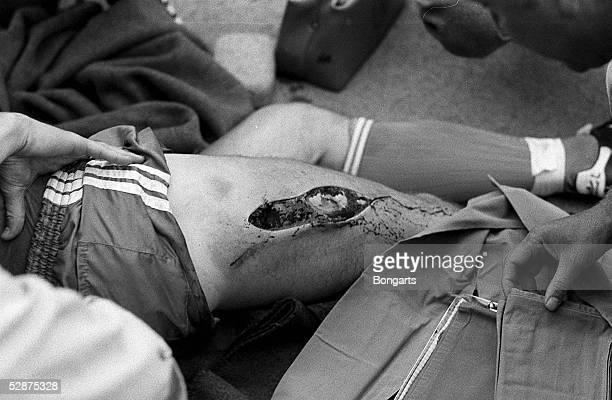 BUNDESLIGA 81/82 Bremen SV WERDER BREMEN ARMINIA BIELEFELD Ewald LIENEN/Bielefeld wurde nach Foul von Norbert Siegmann schwer verletzt