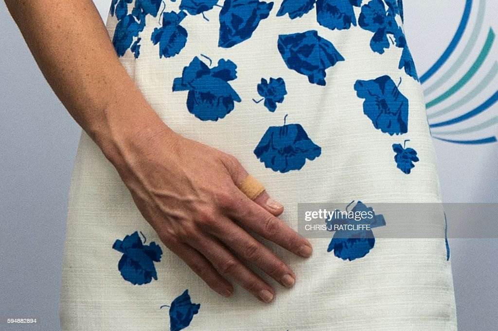 Britain's Catherine, Duchess of Cambridge wears a plaster on her thumb as she visits Hayward Tyler in Luton, north of London, on August 24, 2016, where she and the Duke of Cambridge presented the company with The Queen's Award for Enterprise (International Trade) and opened their newly built Centre of Excellence. Hayward Tyler designs, manufactures, and services fluid-filled electric motors and pumps for high-pressure, high-temperature applications and environments across the global energy sector. / AFP / CHRIS