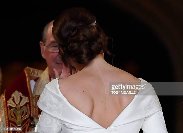 Britain's Princess Eugenie of York with her dress showing the scar on her back from surgery when she was 12 arrives for her wedding to Jack...