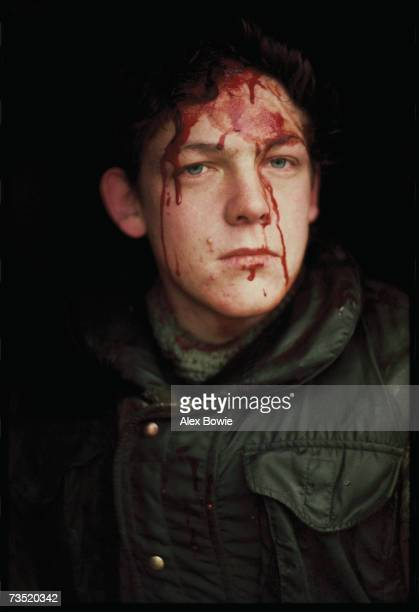 A British soldier hit by an IRA sniper while on patrol in County Fermanagh along the border of Northern Ireland and the Republic of Ireland 28th...