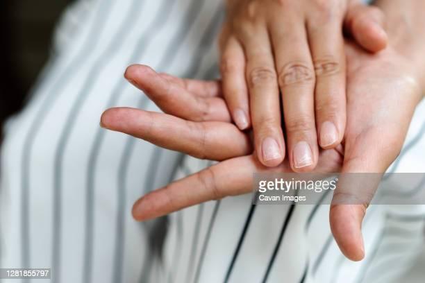 brittle damaged nails after using shellac or gel-lacquer - breekbaarheid stockfoto's en -beelden