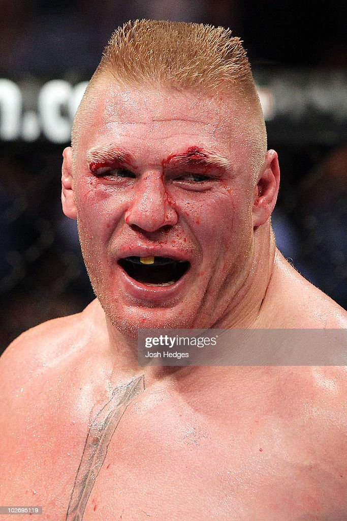 Brock Lesnar looks on after the first round while taking on Shane Carwin during the UFC Heavyweight Championship Unification bout at the MGM Grand Garden Arena on July 3, 2010 in Las Vegas, Nevada.