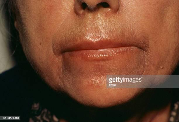 Brocq's Pigmented Peri Buccal Dermatitis