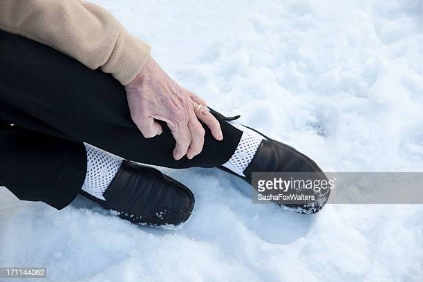 broken ankle after fall on snow - slip and fall stock photos and pictures