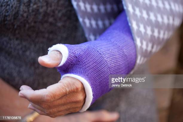 broken arm - broken arm stock pictures, royalty-free photos & images