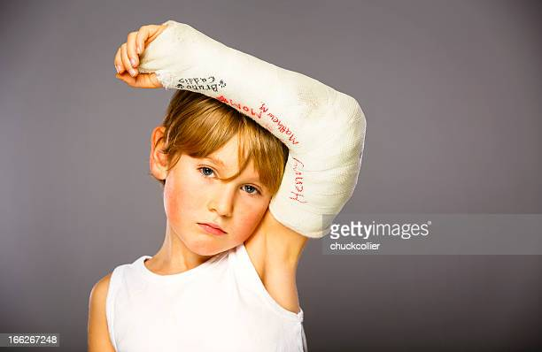 broken arm - male armpits stock pictures, royalty-free photos & images
