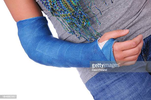broken arm - cast colors for broken bones stock pictures, royalty-free photos & images