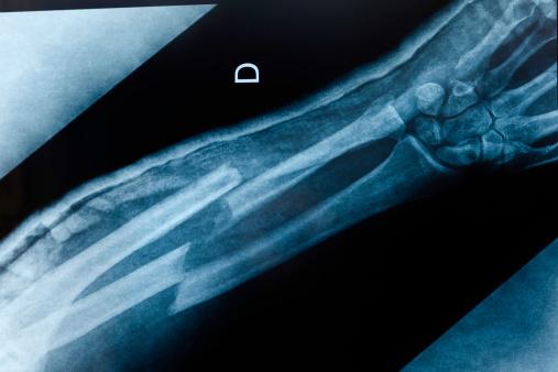 broken arm x-ray 168533336